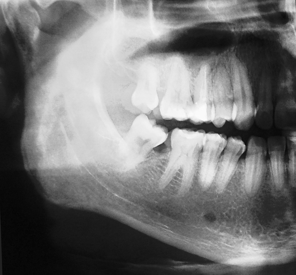 photo shows an X-ray of a jaw