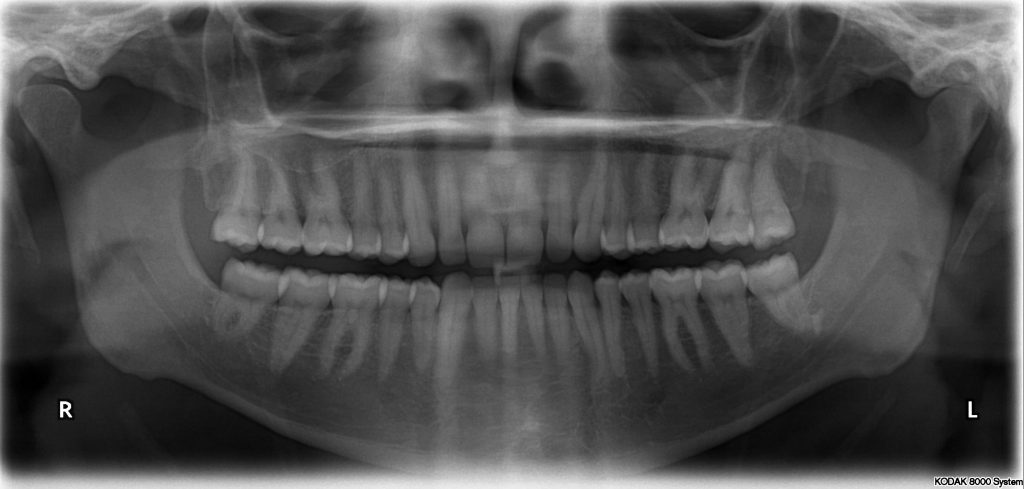 photo shows an X-ray of all 32 human teeth.